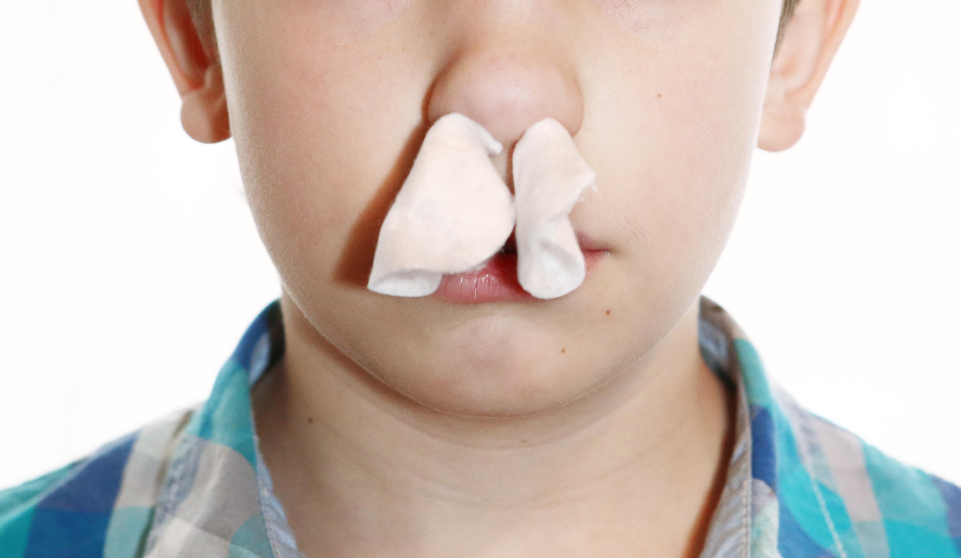 recurring nosebleeds adults